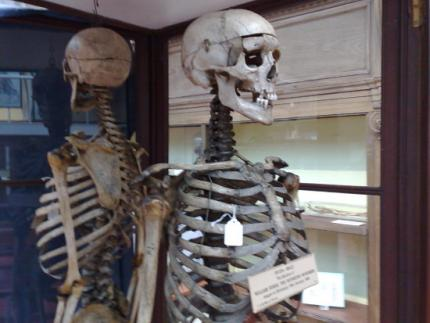 Skeleton of William Burke, in Edinburgh University's medical school